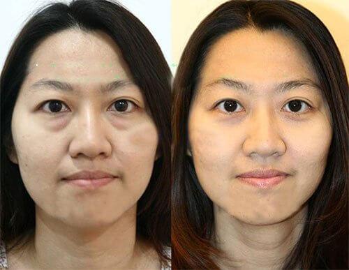 Phản hồi từ khách hàng sau khi sử dụng sản phẩmKem Lefery Anti Aging